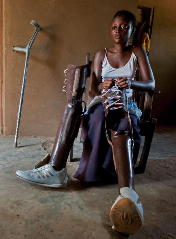 Prepogosto so žrtve protipehotnih min otroci, tudi ta deklica v Demokratični republiki Kongo (Vir: osebni arhiv Arneja Hodaliča)